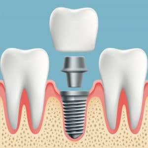 3-D render of a dental implant being placed with light blue background.